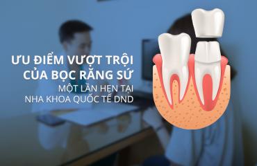 Ưu điểm của bọc răng sứ 1 lần hẹn tại Nha khoa quốc tế DND