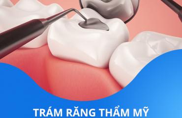 Trám răng thẩm mỹ chỉ 15 phút