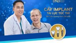5 thac mac thuong gap khi Cay ghep Implant
