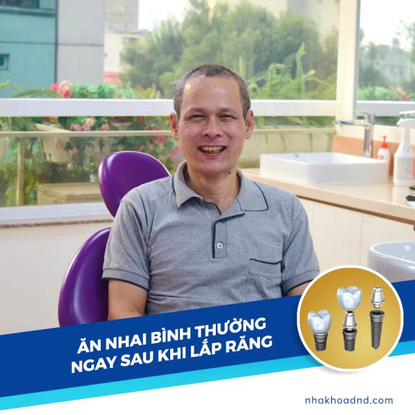 5 thac mac thuong gap khi Cay ghep Implant - Tran Quang Vinh