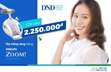 Vũ Ngân Hà - Nha khoa Quốc tế DND 157 Bùi Thị Xuần, Hà Nội