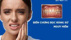 Biến chứng bọc răng sứ