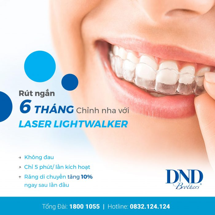 rút ngắn thời gian niềng răng với laser lightwalker