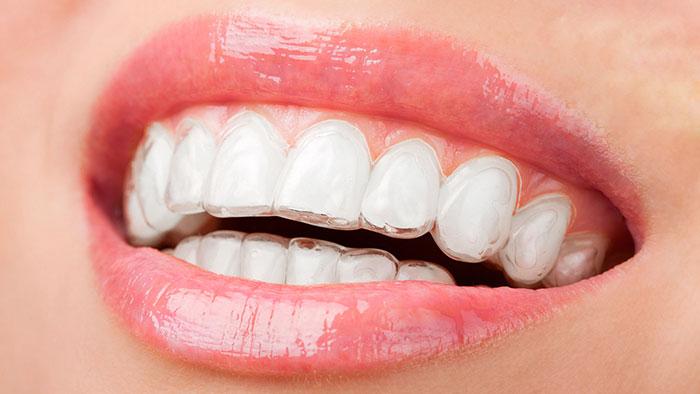 Niềng răng có đau không?
