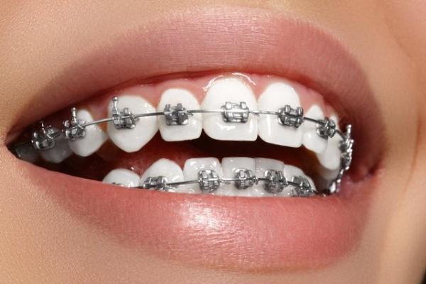 phân biệt niềng răng mắc cài và Invisalign
