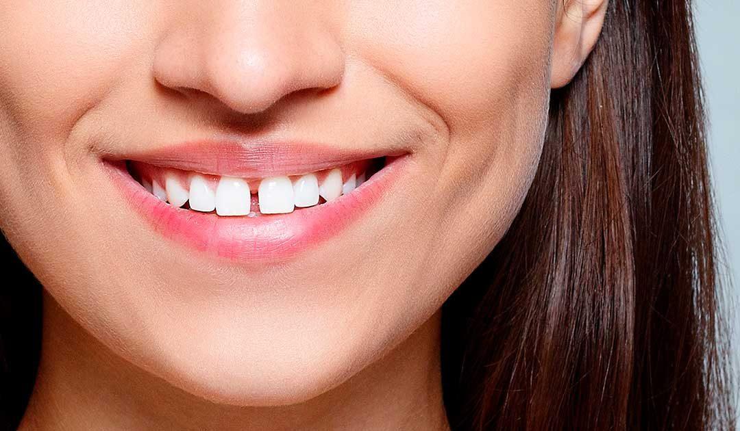 Làm gì để khắc phục răng thưa?