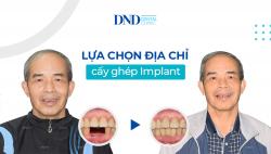 cay-ghep-implant