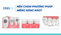 3-phuong-phap-nieng-rang