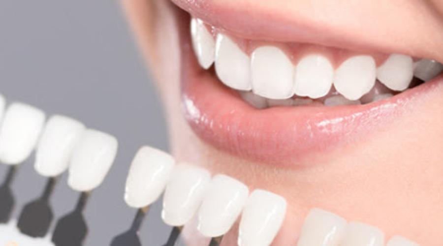 giá răng veneer