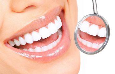 Tại sao lại thực hiện niềng răng sau khi đã bọc răng sứ?