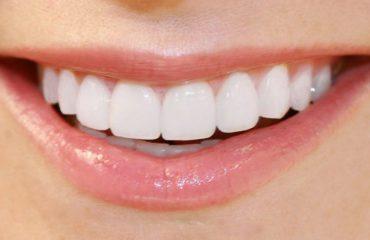 bọc răng sứ implant