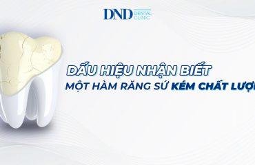 rang-su
